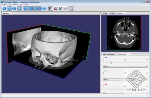 3DimViewer